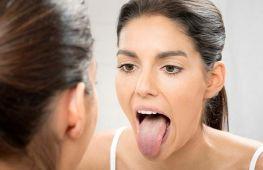 Белый налет на языке — патология или норма: причины и лечение у взрослых