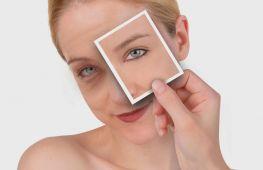 Как быстро и эффективно убрать синяки под глазами в домашних условиях