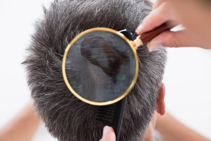 Соль не только избавит от перхоти, но и улучшает рост волос