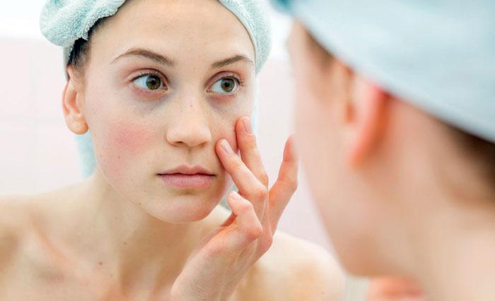 Будьте внимательны: синяки под глазами могут быть признаком заболевания
