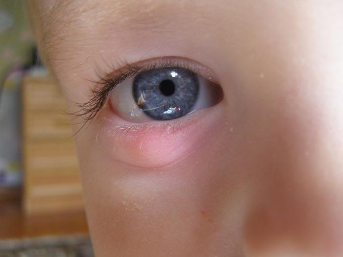 Если ячмень возник у ребенка, следует сразу обратиться к врачу