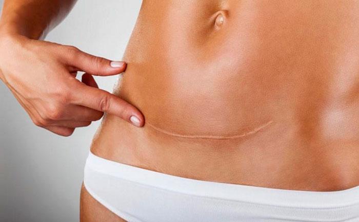 Кесарево сечение производится по медицинским показаниям