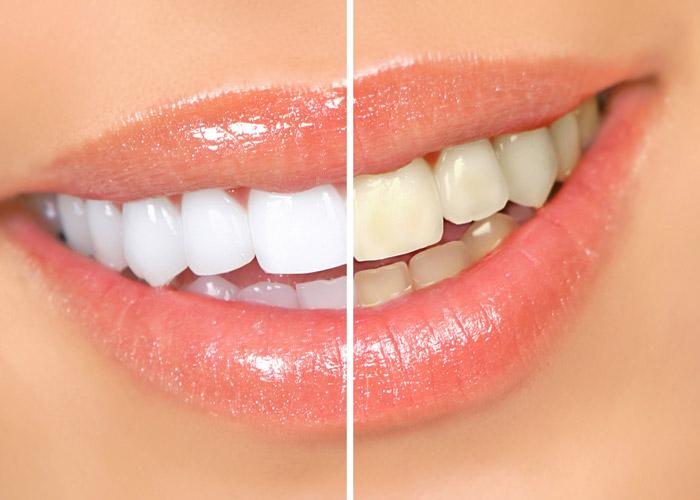 Ультразвуковая чистка зубов или air flow