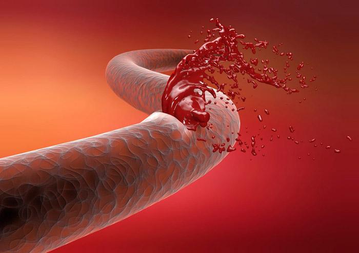 Как остановить кровь из артерии и вены