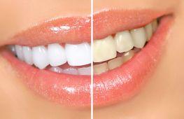 Ультразвук или метод air flow: что выбрать для чистки зубов