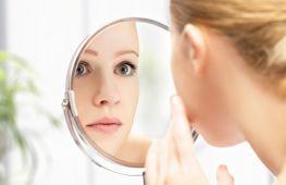 Сосудистые звездочки на лице: устранение в домашних условиях