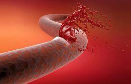 Кровотечение из вены и артерии: как можно остановить в домашних условиях